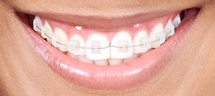 bracket-transparente-doctor-alberto-cervera-ola-dental