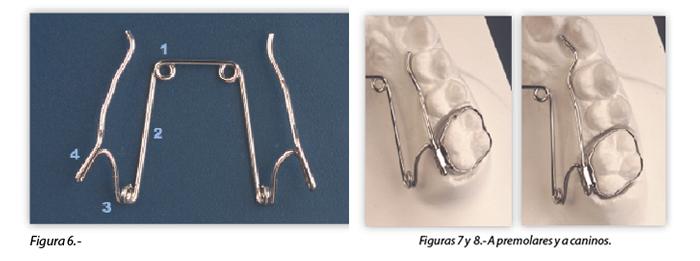 ortodoncia-biomecanica-premolares-caninos