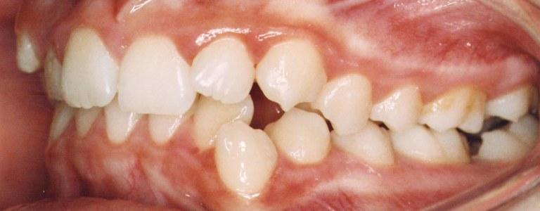 inainte de tratament aparat dentar