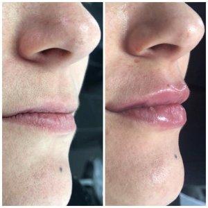 Harmonização Facial e preenchimento labial