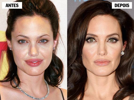 Bichectomia Angelina Jolie