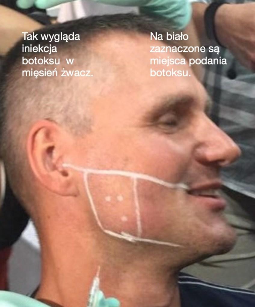 botoks podawany na bruksizm - iniekcja