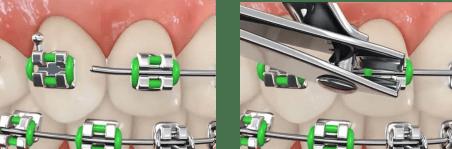 Corte fio ortodontia