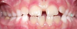 Espaços entre os dentes são naturais nessa etapa da dentição