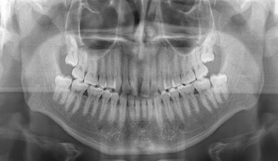 Terceiro molar semi irrupcionado