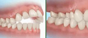 Exemplo de mordida aberta anterior e mordida cruzada posterior