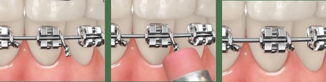 Dobre o fio de amarrilho na direção do seu dente, de preferência para baixo.