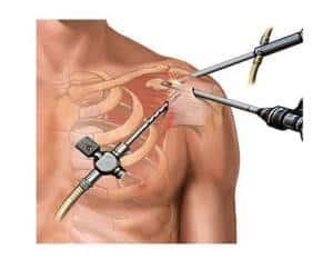 Artroscopia ombro
