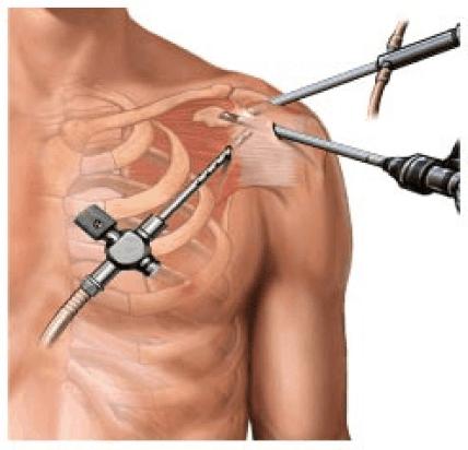 artrocospia do ombro para resolver capsulite adesiva