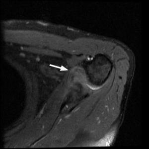 cápsula articular