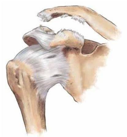 Figura demonstrando a lesão dos ligamentos estabilizadores da articulação acromioclavicular