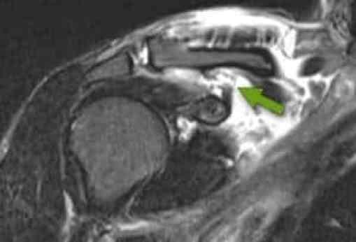Ressonância magnética do ombro demonstrando ruptura dos ligamentos coracoclaviculares