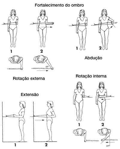 Exercícios para fortalecimento do ombro após luxação ou ombro deslocado