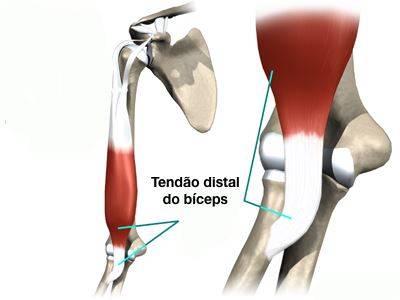 Tendão do bíceps no cotovelo