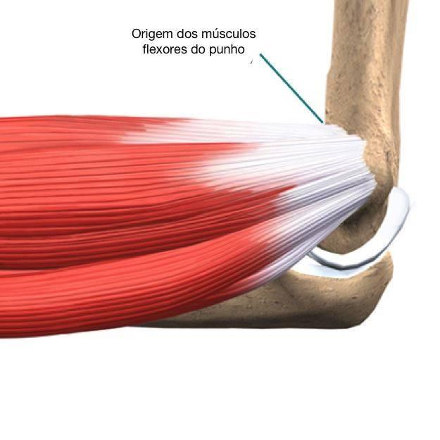Epicôndilo medial, origem dos músculos flexores do punho e dedos