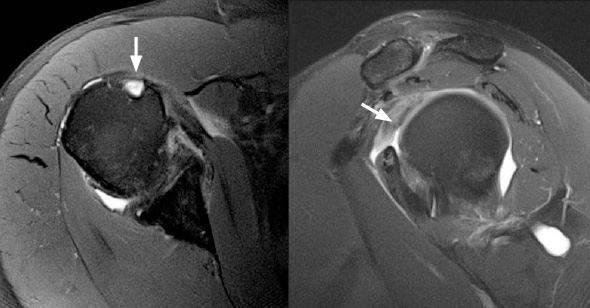 Ressonância magnética demonstrando ausência do biceps no ombro pela ruptura