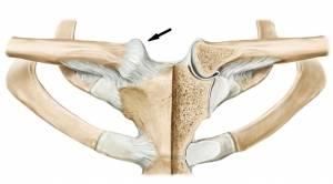 Articulação esternoclavicular (seta)