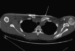 Tomografia computadorizada demostrando luxação esternoclavicular posterior