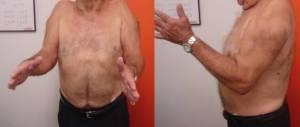 """Paciente com artropatia do manguito rotador bilateral e """"psedoparalisia do ombros""""."""