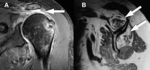 Ressonância magnética do ombro com artropatia do manguito rotador. A) Rotura do tendão supraespinal com grande retração (seta). B) Degeneração gordurosa dos músculos supraespinal e infraespinal.