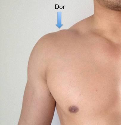 Localização da dor na artropatia degenerativa (artrose) acromioclavicular