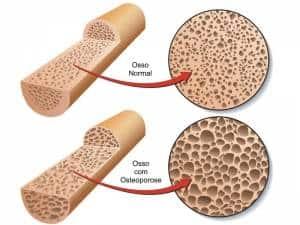 osteoporose_fraturaombro_2