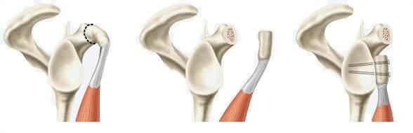 Cirurgia de Latarjet