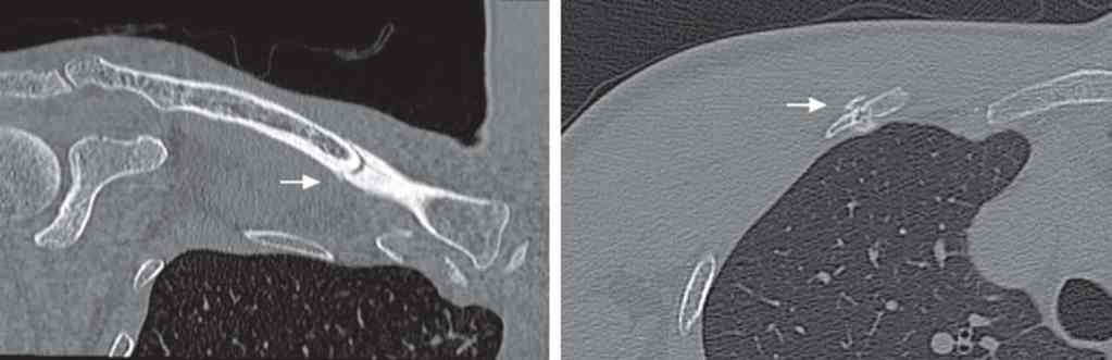 Figura 2. — tomografia computorizada que mostra a clavícula e a fratura da segunda costela a) visão coronal que mostra a fratura da clavícula; b) visão axial que mostra a se a fratura da costela.