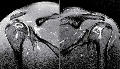 Figura 4. Imagem de ressonância magnética dos ombros mostrando o acometimento bilateral sem colapso das articulações: A) direita, B) esquerda.