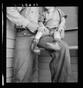 """""""Tulare County. In Farm Security Administration )FSA) camp for migratory workers. Baby with club feet wearing homemade splints inside shoe.""""s"""