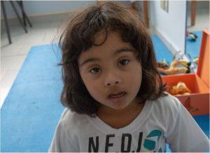 menina com síndrome de down olha para a câmera