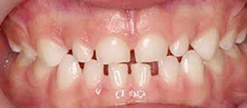 denticion temporal-osinteresa.com