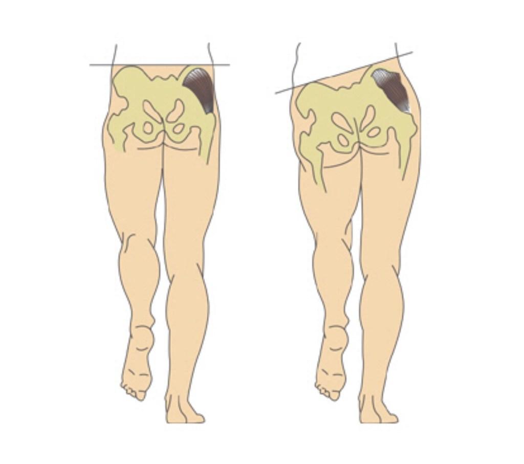 엉덩이 근육이 약화되면 골반의 불균현을 가져온다