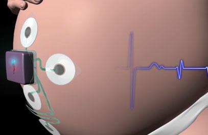 3D Animation Patch System