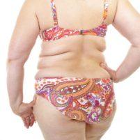 Overweight Woman in Biikini Med Pic