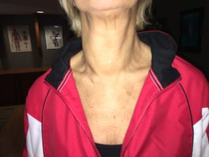 Lymphatic System Swelling in Neck 3