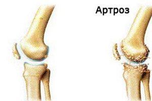 utilizarea unei biciclete pentru artroza articulației șoldului