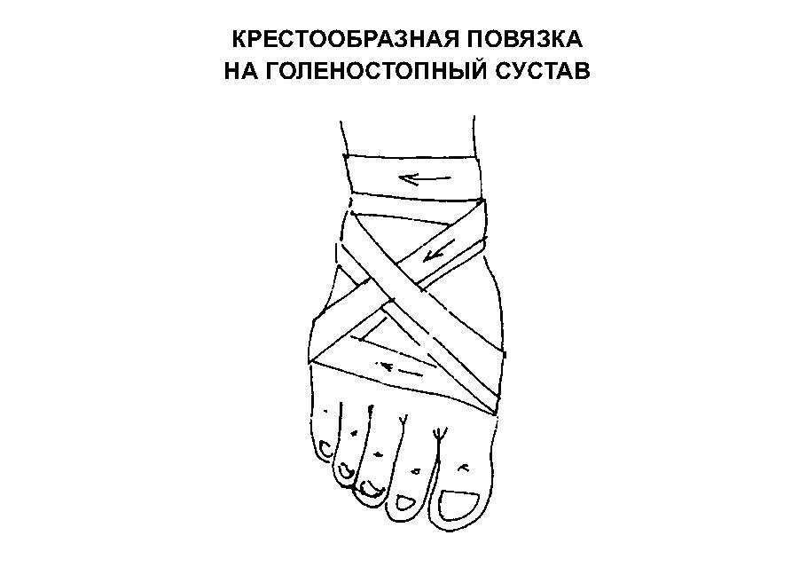 Техника выполнения восьмиобразной повязки на голень и стопу