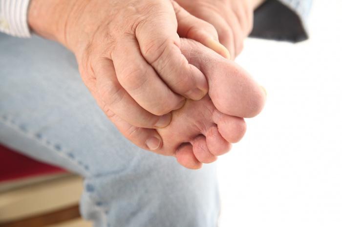 Отекает большой палец на ноге. Опух и болит большой палец на ноге: что делать и как снять опухоль (отек). Дополнительная информация о самолечении