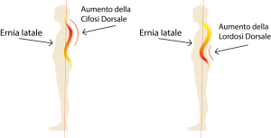 simonetta alibrandi osteopata posturologo postura corretta ernia iatale