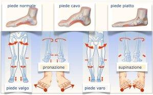 simonetta alibrandi osteopata variazioni posturali dei piedi