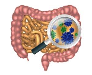 simonetta-alibrandi-osteopata-posturologo-personal-trainer-dolore-allinguine-mal-di-schiena-sintomi-rimedi-esercizi-Colon-irritabile-psoas-microbiota-intestinale