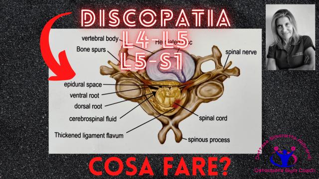 Simonetta-alibrandi-Osteopata-personal-trainer-lombalgia-discopatia-l4-l5-s1-esercizi-efficaci-mal-di-schiena-rimedi Total body Postural Adjustment