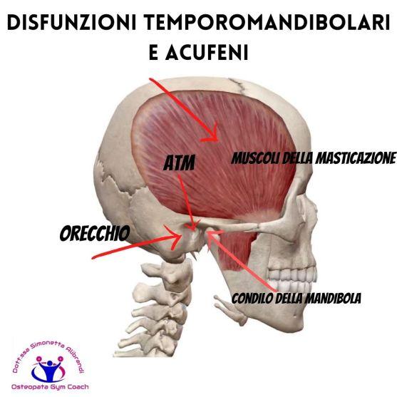 Simonetta-Alibrandi-osteopata-posturologo-cervicalgia-vertigini-acufeni-rimedi-cause-esercizi-Disfunzioni-temporomandibolari-osteopatia