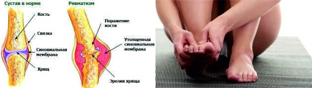 Kojų venų ligos – stovimą darbą dirbančių žmonių problema – topfilmai.lt