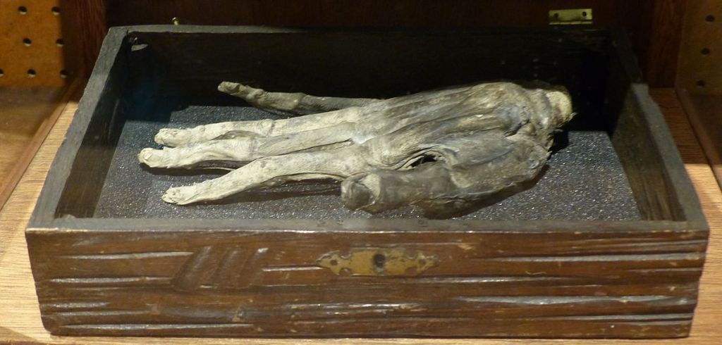 The hand of glory is a grisly Medieval magic tool used by thieves and burglars.