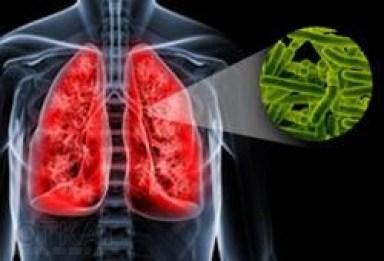 35multidrug-resistant-tuberculosis-bacterium