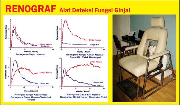 Pemeriksaan Renogram, Isotop Nuklir Untuk Deteksi Gangguan Fungsi Ginjal