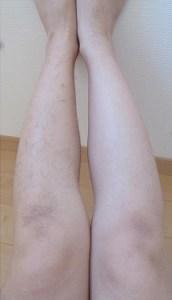デリーモで脱毛している脚の画像