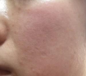 アルバニアホワイトニングクリームを塗った肌の状態